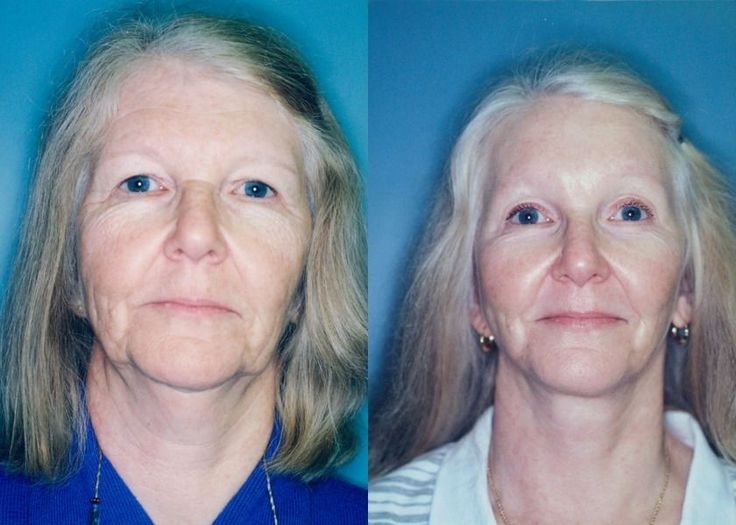Non-Surgical Facelift Performing Face Gymnastics  Remedies