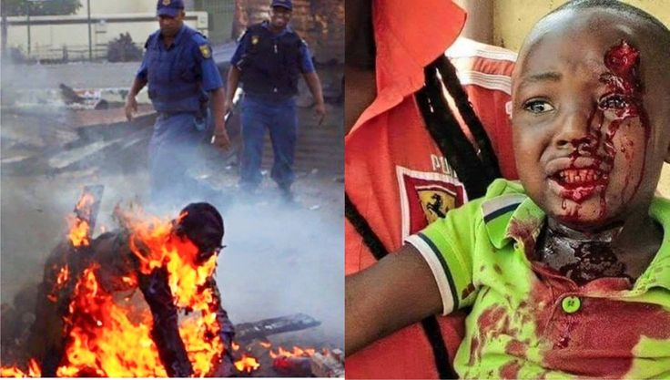 Xenophobic attacks in South Africa 2015. Horrific Barbarism.