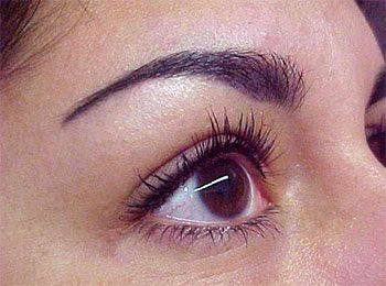 Perfect eyeliner tattoo   In between lashes + Super thin line created right on top of lashes. It just makes your eyes pop  appear bigger. Very natural (: