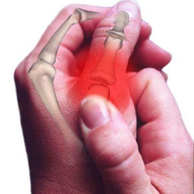 Arthrite du pouce