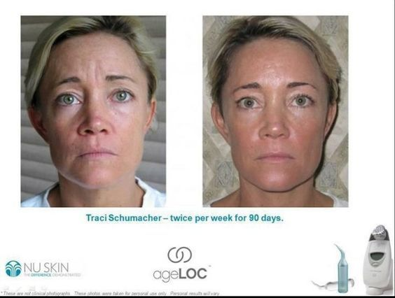#americandream #womanslook #antiaging #skincare #device #results #beforeafter