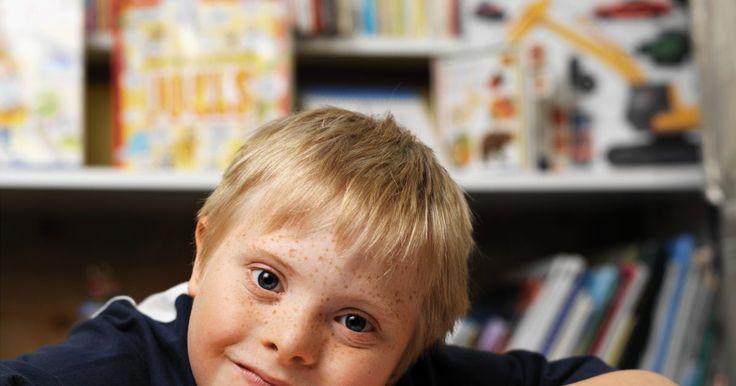 Sintomas da síndrome de down durante a gravidez. A síndrome de down (trissomia 21) é uma doença genética em que a pessoa tem uma cópia extra do cromossomo número 21. Em circunstâncias normais, as pessoas têm um total de 46 cromossomos, dos quais 23 vêm da mãe e os outros do pai. Porém, uma pessoa com síndrome de down tem mais cromossomos. O cromossomo extra traz vários problemas físicos e ...