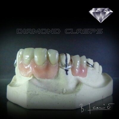 New generation of clear clasps is here! No porosity, no staining, no braking. It offers chemical bonding to acrylate, it is crystal clear and literary invisible on the wet teeth.  Pm me for more info.