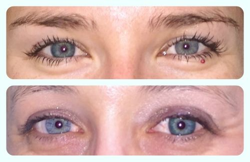 Natural Blue Contact Lenses For Dark Eyes