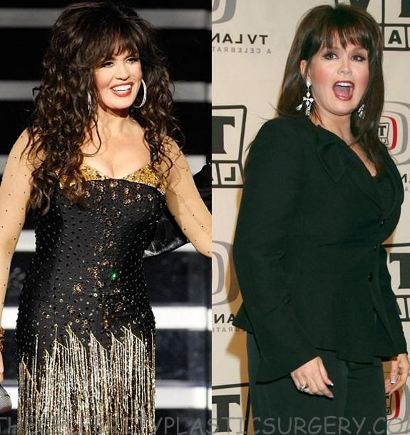 marie osmond after plastic surgery
