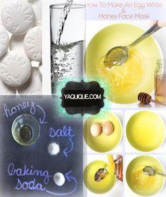 Como quitar las espinillas rapido limón unas 2 o 3 gotas en la espinilla, agua, enjuage bucal, agua de arroz, rosa mosqueta, aceite de almendras y mucho mas