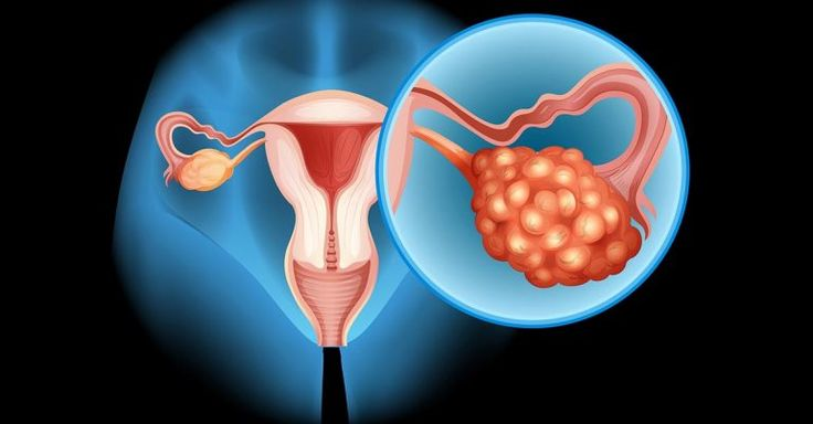 4 Early Symptoms Of Ovarian Cancer That You Should Be Aware Of