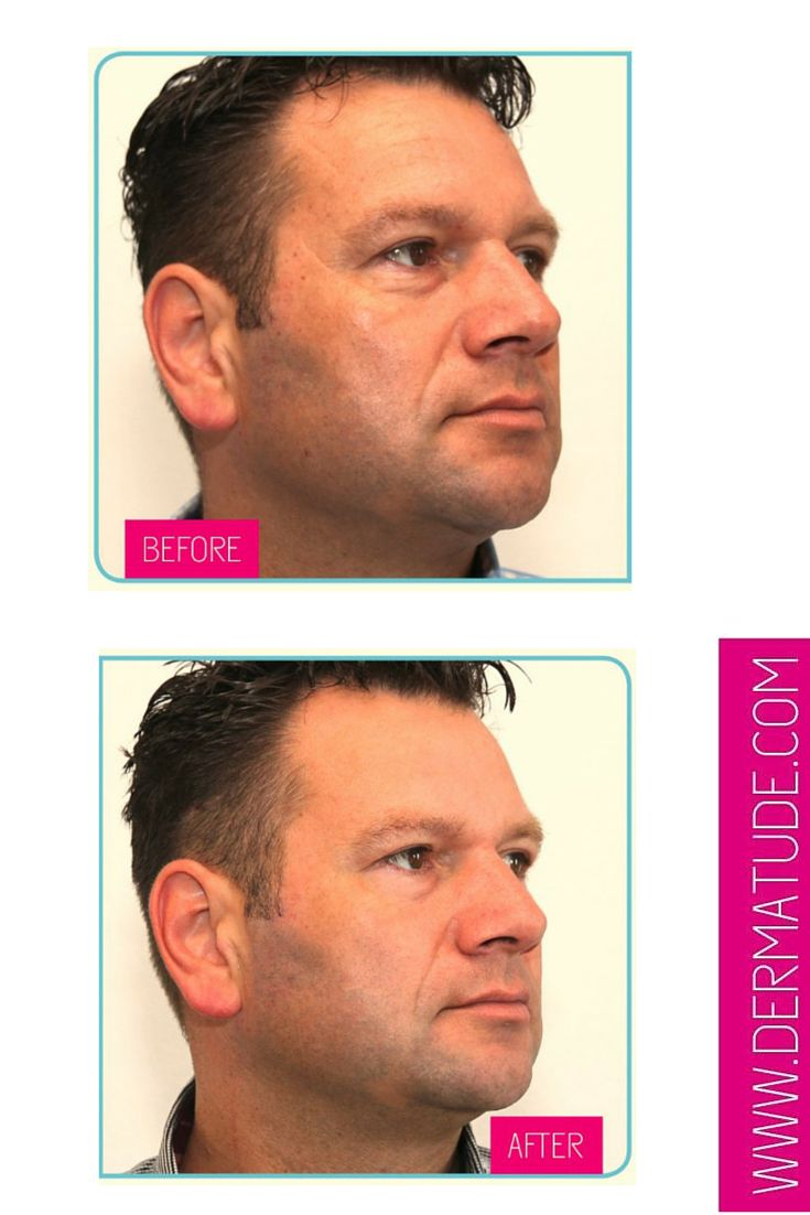 #Dermatude Before and After Facial-Left