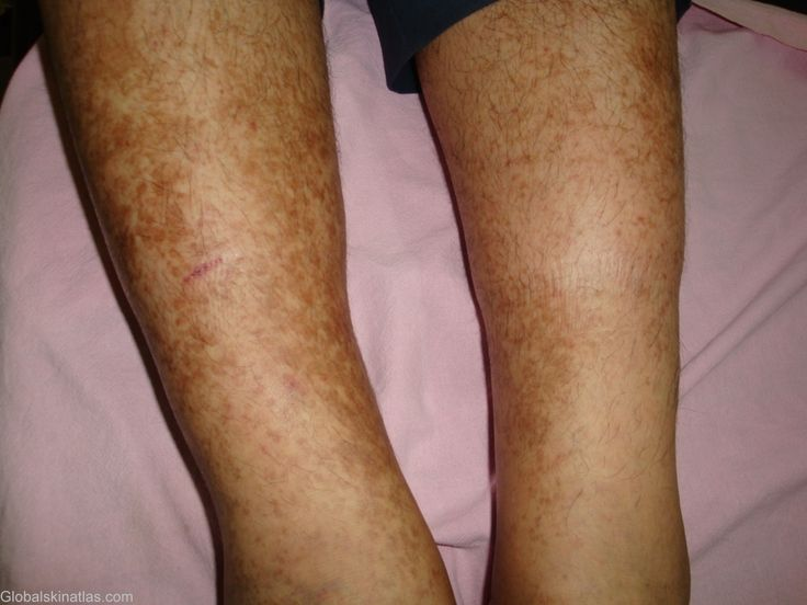 How To Get Rid Of Age Spots On Legs