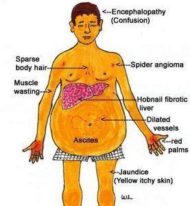 #Liver #Cirrhosis