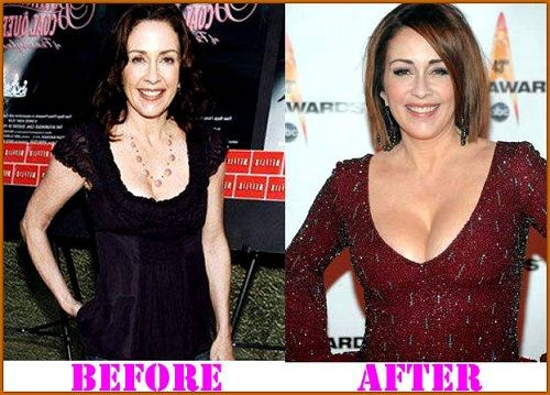 Patricia Heaton Plastic Surgery is a Non Usual Thing