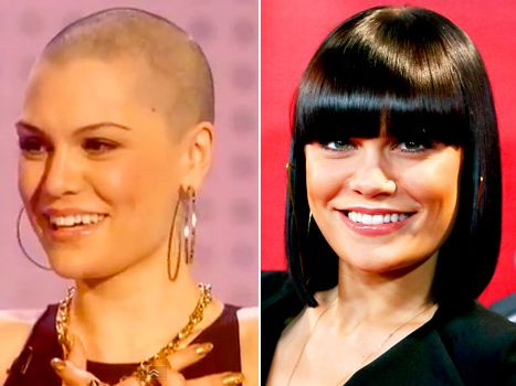 Jessie J Shaves Her Head Bald for Charity! I will forever be a fan of hers. she's so perfect in every way. Such an inspiration. <3