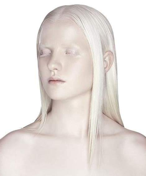 950 Best Images About Albinos On Pinterest