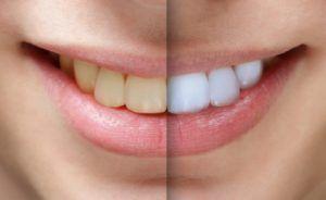 Albirea Dentara – STOMATOLOGIE