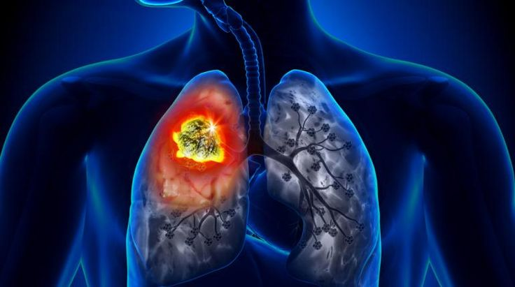 Get to Know the Real Causes of Lung Cancer | Health Digezt