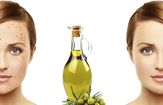 Benefits The Skin:  Using pomace oil as massaging oil can give you a healthy and smooth skin. Pomace olive oil is used in several massages as a substitute for extra virgin olive oil as it contains almost similar composition but is a lot cheaper. Pomace olive oil is especially helpful, if you have a dry skin. It helps to nourish and treat the dry skin more effectively. Using a little bit of pomace olive oil during your bath can help rejuvenate your skin.
