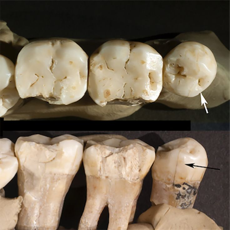 Neanderthal dentistry used tools to treat toothache 130000 years ago.