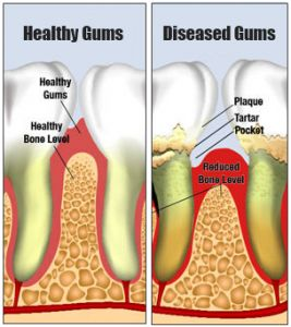 Gingivitis and Periodontitis Fixes