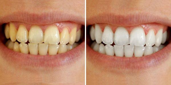 Τα δόντια μου έλαμψαν! Τα λεύκανα με 6 αποχρώσεις πολύ εύκολα και χωρίς δυσκολίες! Και σχεδόν χωρίς χρήματα! Φαίνεται απίστευτο αλλά είναι αλήθεια! Μάθετε πως!