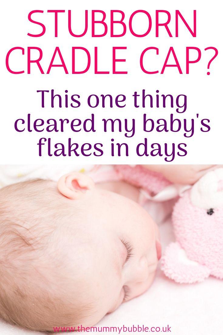 How To Treat Baby S Cradle Cap Baby Cradle Cap Cradle Cap Cradle Cap Treatment