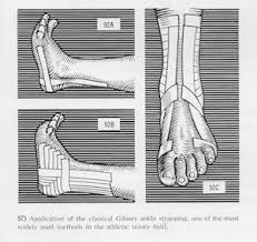 Image result for 1960 ankle tape
