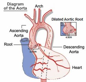 Aortic root dilation: The aortic root is the area where the aorta meets the aortic valve. With Marfan syndrome, the aortic root may open or widen. This can cause the aortic valve to become stretched and leak.