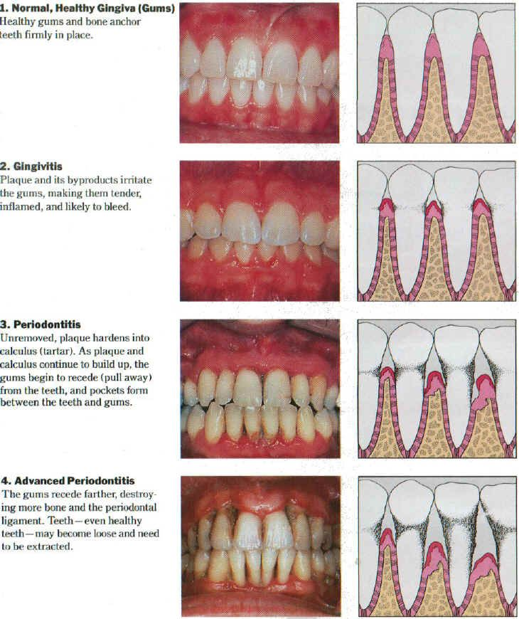 Only $17 - if you are NOT in the Board Exam Prep Academy (this is included inside the Board Exam Prep Academy so don't purchase if you are a member), this Periodontal eCourse! Learn all about periodontal disease, types, cases, and full power points! Perfect for those taking the board exam and want to make sure they have it all covered. For Dental Hygiene and Assisting Students. LIKE US on Facebook for the course.  See more at www.dentalelle.com from Dentalelle Tutoring