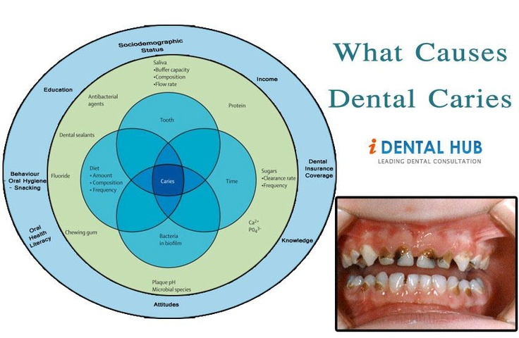 What Causes Dental Caries
