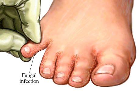infecção fúngica do pé fig 1