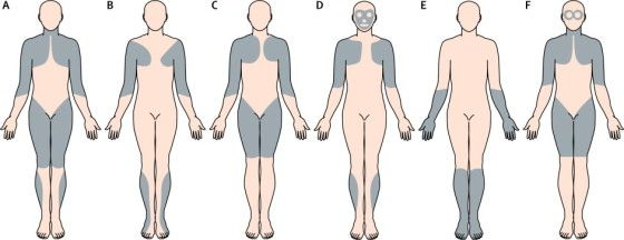 Graphic of Muscular Dystrophy Types