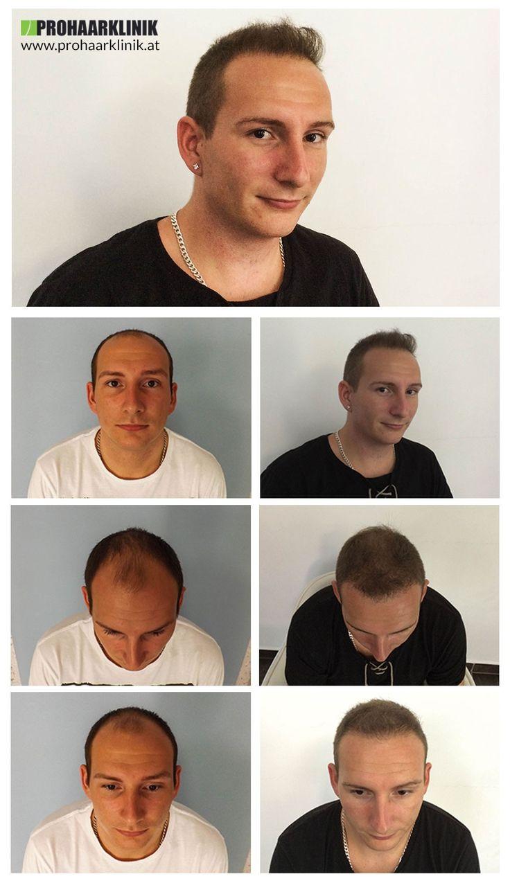 http://www.prohaarklinik.at/haartransplantation-vorher-nachher-bilder/   Haarimplantat Ergebnisse der FUE Haartransplantation - PROHAARKLINIK  Adam wurde in seinem Tempel, oder Zonen 1,2,3 Glatzenbildung. Er brauchte mehr als 4000 Haare für dieses gute Ergebnis. Wir hätten mehr von seiner Spenderzone zu verpflanzen, aber er diesen Betrag. Hergestellt von PROHAARKLINIK angefordert.