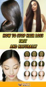 The first signs of hair loss are usually disregarded as insignificant or ignored to the point when hiding bald patches is no longer possible. Most people are unaware that receding hair should be taken seriously from the start, especially when it comes to androgenic alopecia, as early treatment is crucial in order to preserve your hair follicle life.