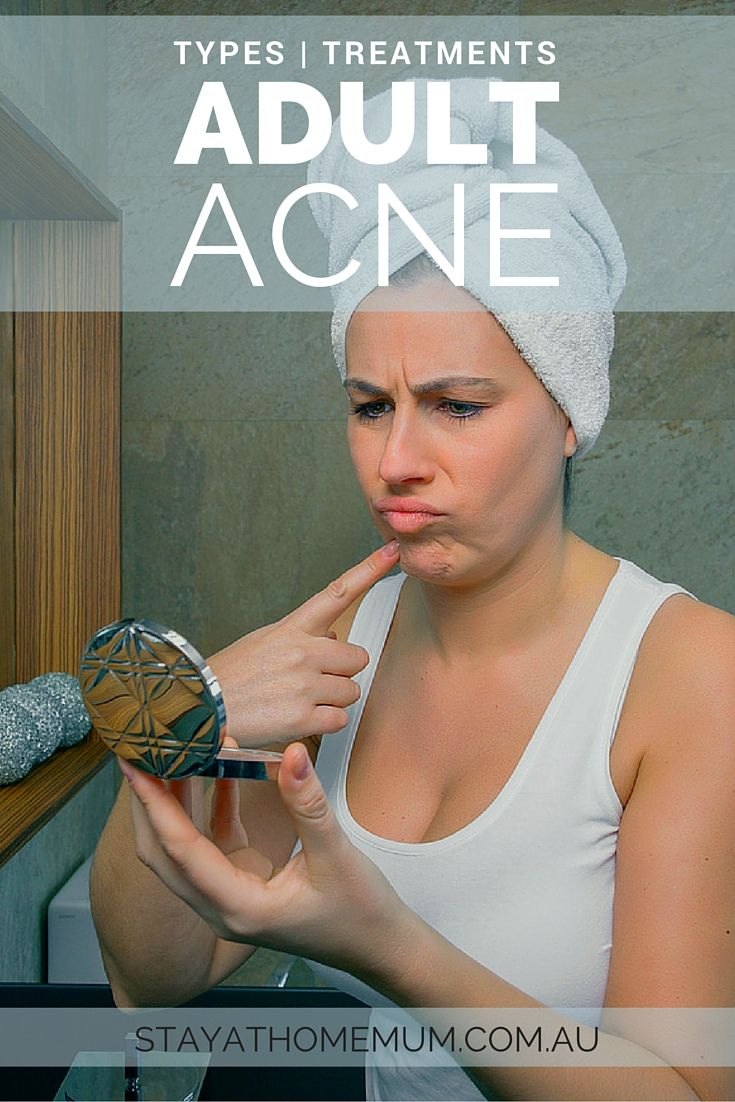 Natural ways to get rid of acne fast at home. Home Remedies for acne marks.  Get rid of acne scars in less than 1 week at home using only natural home  ...