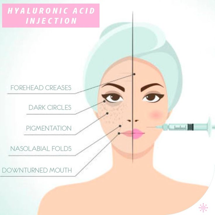 Hyaluronic acid, the most commonly used at present, is the most reliable filler although it is a temporary one. Its longevity varies between 8 and 10 months.  /// For more information 📲 WhatsApp: 0090543 470 47 09 ///  #plasticsurgery #lipfiller #botox #filler #Aesthetics #beauty #estética #cirugíaplástica‬ #estetica #chirurgiaplastica #Ästhetische #plastischeChirurgie #chirurgieplastique #Schönheit #ринопластика #breast#Busen #brust #الثدي #sein #réductiondepoitrine #Brustverminderung