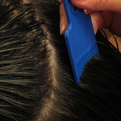 how to kill lice eggs naturally