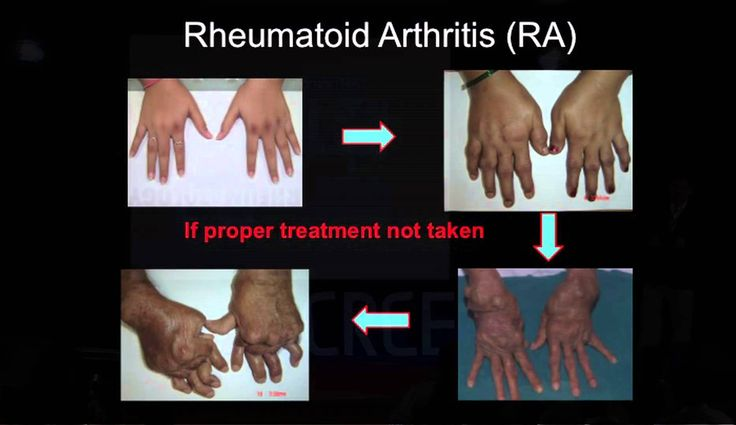 How to kiss joint pains goodbye | Kaushik Bhojani | TEDxCRCE - WATCH VIDEO HERE -> http://arthritisremedy.info/how-to-kiss-joint-pains-goodbye-kaushik-bhojani-tedxcrce/     *** what's good for arthritis ***  Chronic pain in joints are often mistaken for orthopedic ailments. Sometimes the causes could be deeper and that's where a rheumatologist comes into picture. Hear Dr.Bhojani talk to find out more. Dr.Kaushik Bhojani is a Post graduate in Internal...