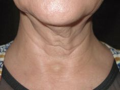 ¡Apunta los 3 remedios que nos deja COSITAS CON MESH para un cuello tonificado y liso!