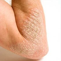 View a Picture of Ringworm Tinea Corporis (Faciei) and learn more about Fungal Skin Diseases.
