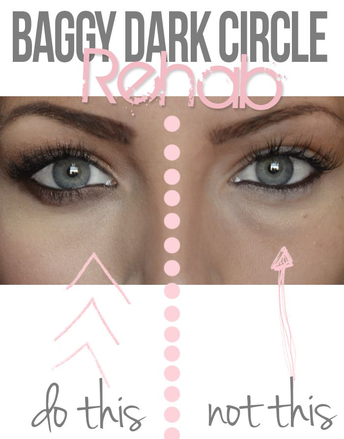 Damage control: The absolute BEST way to diminish baggy under eyes and dark circles. Many great ways to minimize bags etc.
