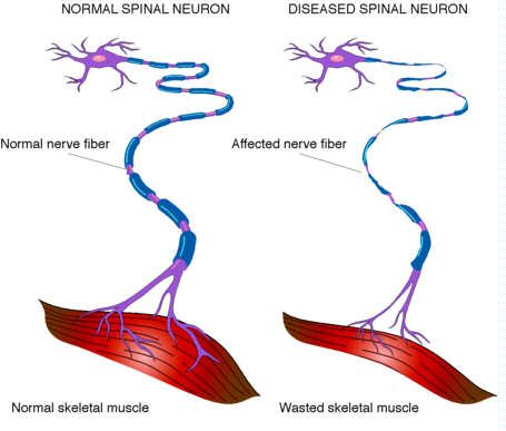 "In Amyotrophic lateral sclerosis, for unknown reasons, these neurons die, leading to a progressive loss of the ability to move virtually any of the muscles in the body. ALS affects ""voluntary"" muscles, those controlled by conscious thought, such as the arm, leg, and trunk muscles."