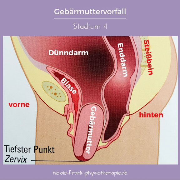 Gebärmuttersenkung