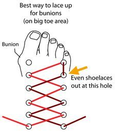different ways to wear your shoelaces for painful feet - Google Search