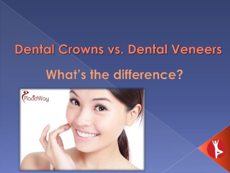Dental Crowns vs. Dental Veneers - What's the Difference?  --  Do you experience extreme sensitivity in your #teeth when eating something hot or cold, caused by loss of enamel and other conditions? PlacidWay presents the difference between #dentalcrowns and #dentalveneers. Its characteristics, benefits and cost of the procedures; you could be sure that PlacidWay is the premier resource for #dentaltreatments. Contact PlacidWay at info@placidway.com