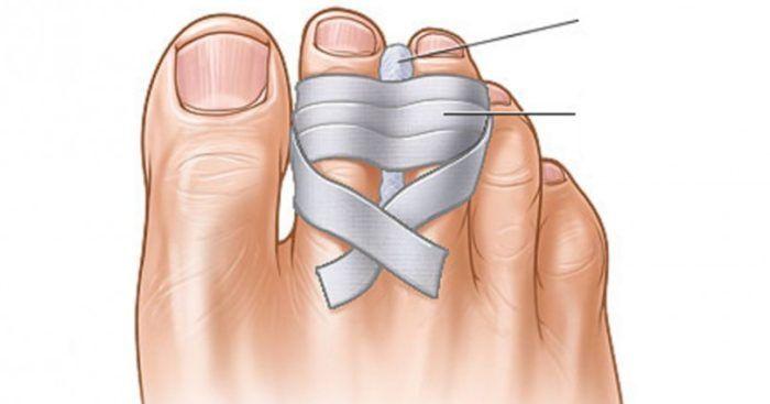 14 Πανέξυπνα Κόλπα για τα Παπούτσια, που ελάχιστες Γυναίκες γνώριζαν μέχρι Σήμερα. 11Το ο κάνει Θαύματα!