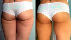3 squat exercises before bed (no weights) for a fuller butt in 30 days!