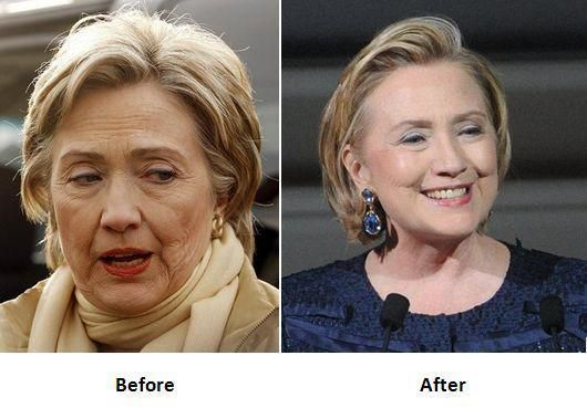 Hillary Clinton gets a face lift Surgery to hide the aging effects from her face and to make her skin…