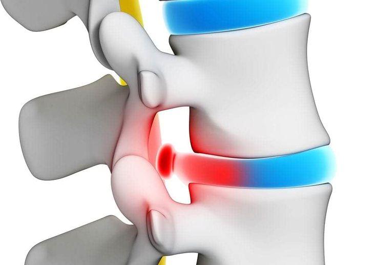 Sintomas comuns, causas de dor lombar, incluindo tensão muscular nas costas, ciatalgia e hérnia de disco lombar, e também tratamentos para sua coluna.