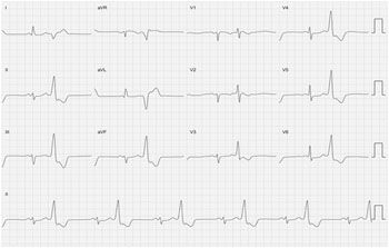 95 best ECG teaching resources images on Pinterest