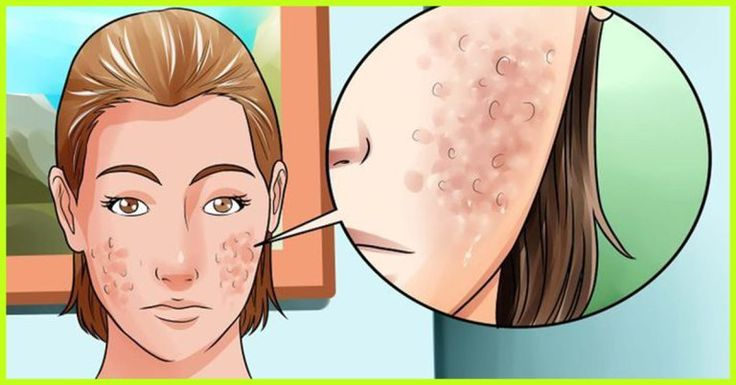 Get rid acne scars naturally healthy beauty ways