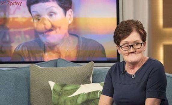 Andree lékaři neodhalili rakovinu včas: Přišla o nos a část čelisti, teď podstupuje sérii operací